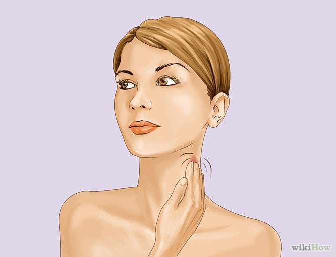 how to get rid of a hicky for work